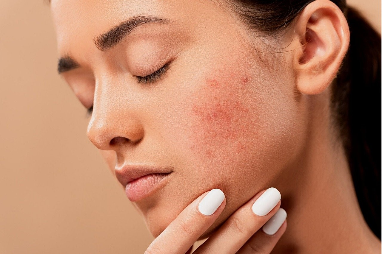 How to Treat Acne Scars Effectively?